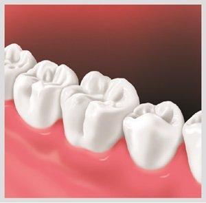 rögzített fogsor